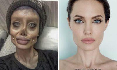 Joven se somete a 50 cirugías para convertirse en Jolie