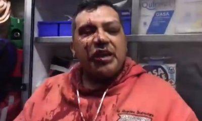 Periodista agredido