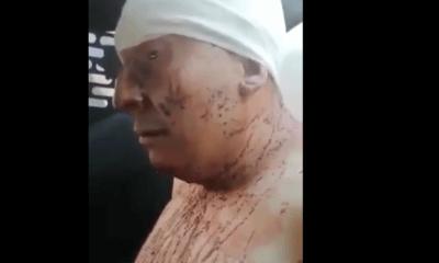Hombre desolla a su esposa en la Gustavo A. Madero
